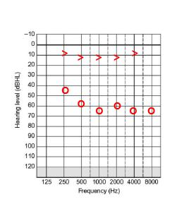 figure 3.1.1